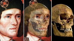 King Richard III as he was seen to be and his newly found 500-year old skull