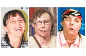 Carmen Blandin Tarleton: her old and new image after her face transplant